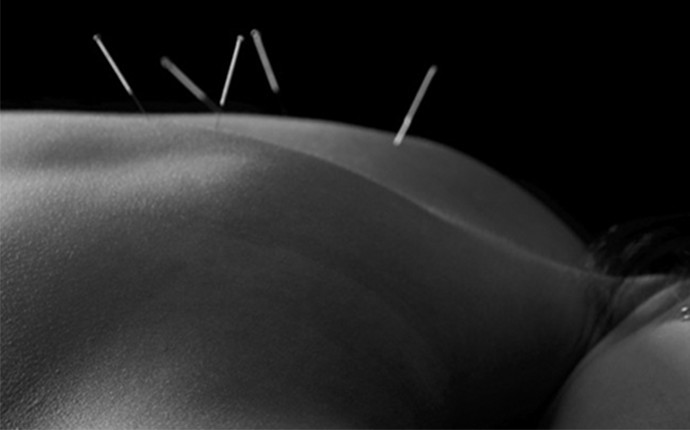 Acupuncture and the Ancient Art of Improving Fertility